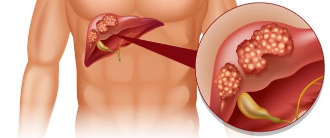 كيف يموت مريض سرطان الكبد ؟