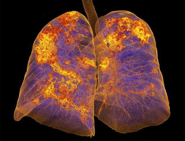 مسح للرئتين المصابة بفيروسات تاجية تظهر مناطق الالتهاب الرئوي