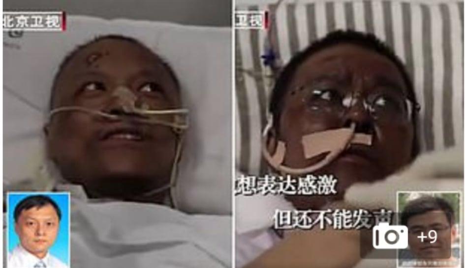 بسبب كورونا طبيبان في ووهان تتحول بشرتهما للون الأسود